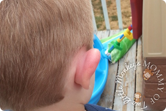 Red Swollen Ear Lobe - What Happened to His Ear!